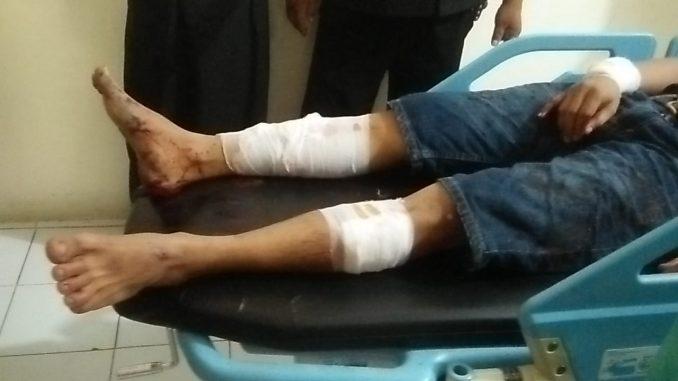 Kaki dan tangan korban penyerangan OTK diperban usai mendapat perawatan di rumah sakit.